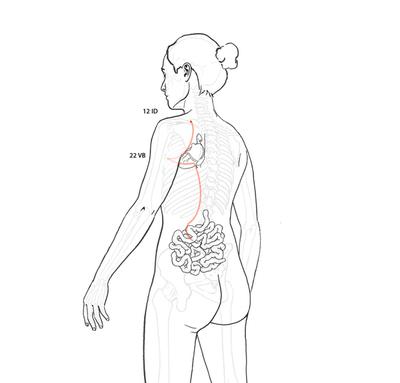 Divergente de intestino delgado