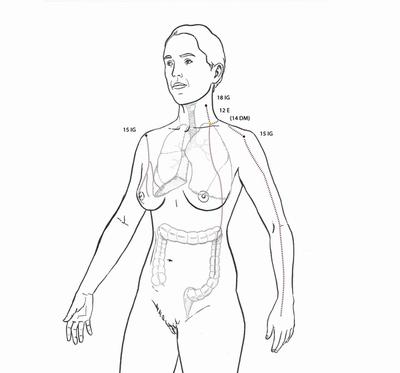 Divergente de intestino grueso