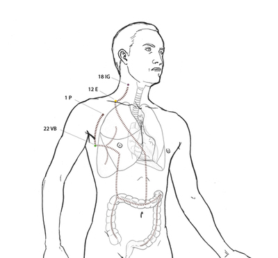 Divergente de pulmon